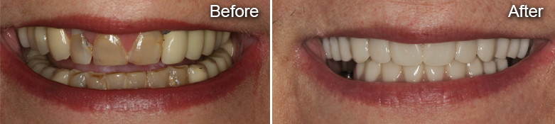 custom cosmetic dentures before after