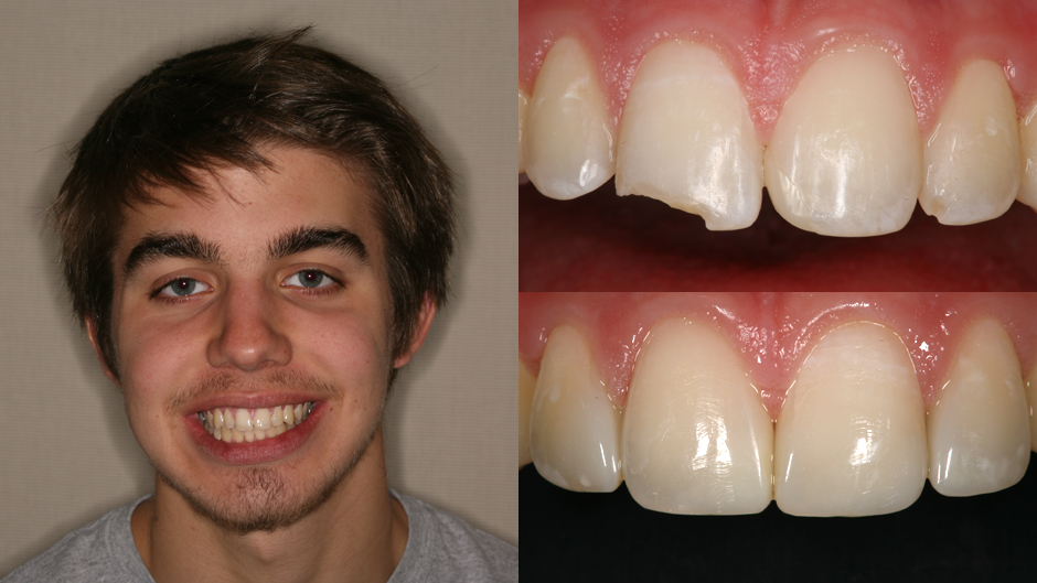 Before Amp After Implant And Composite Bonding