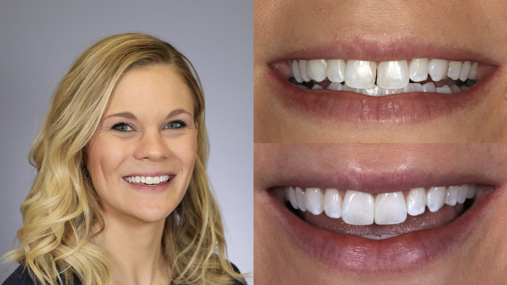 gap between teeth. direct composite resin bonding