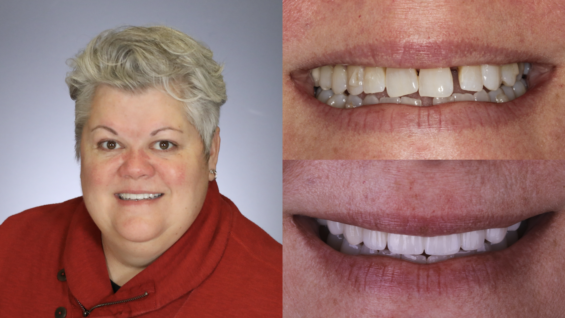 dental implants. porcelain veneers, crowns, bridges