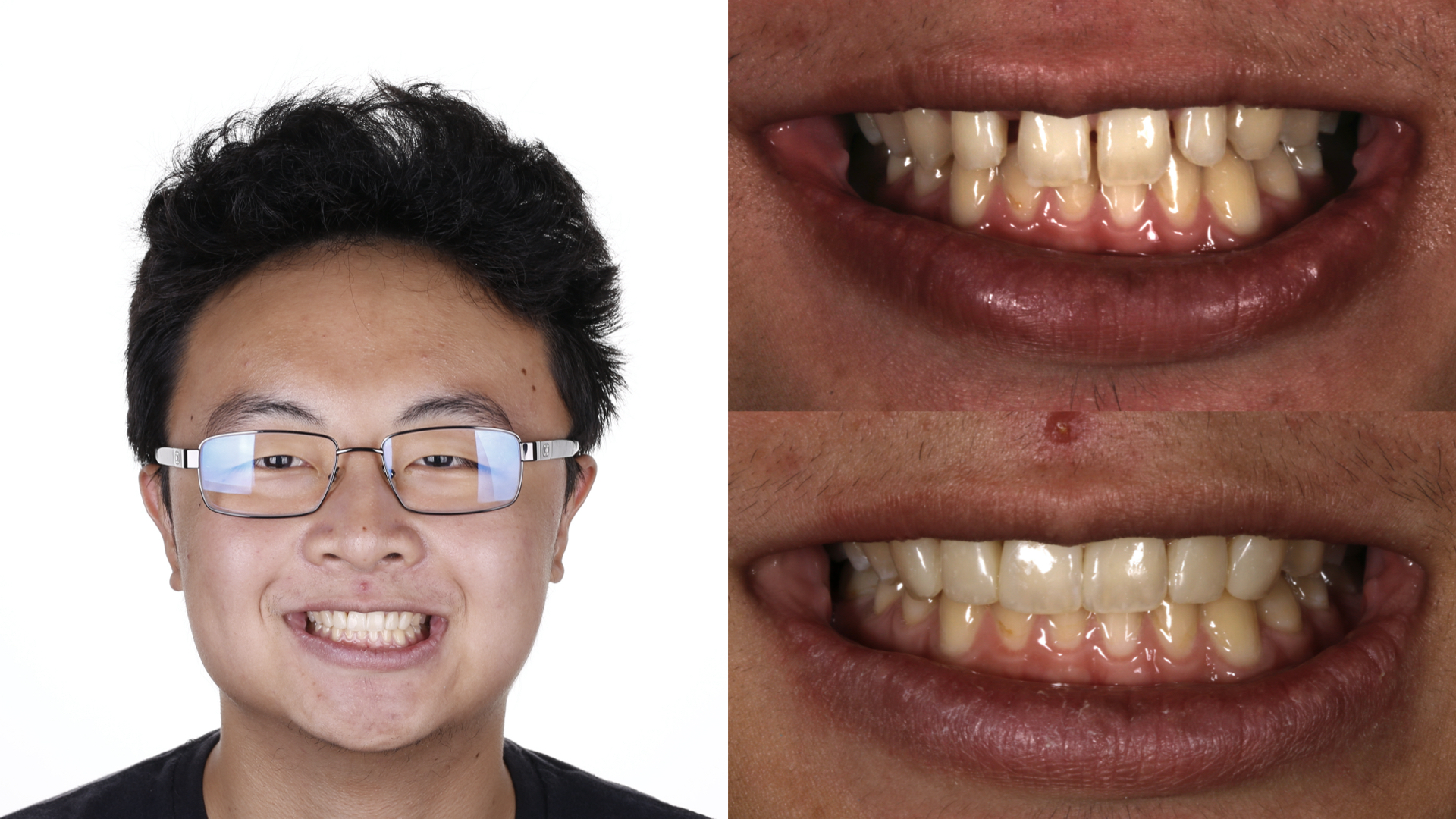 Direct Composite Resin Veneers Treatment