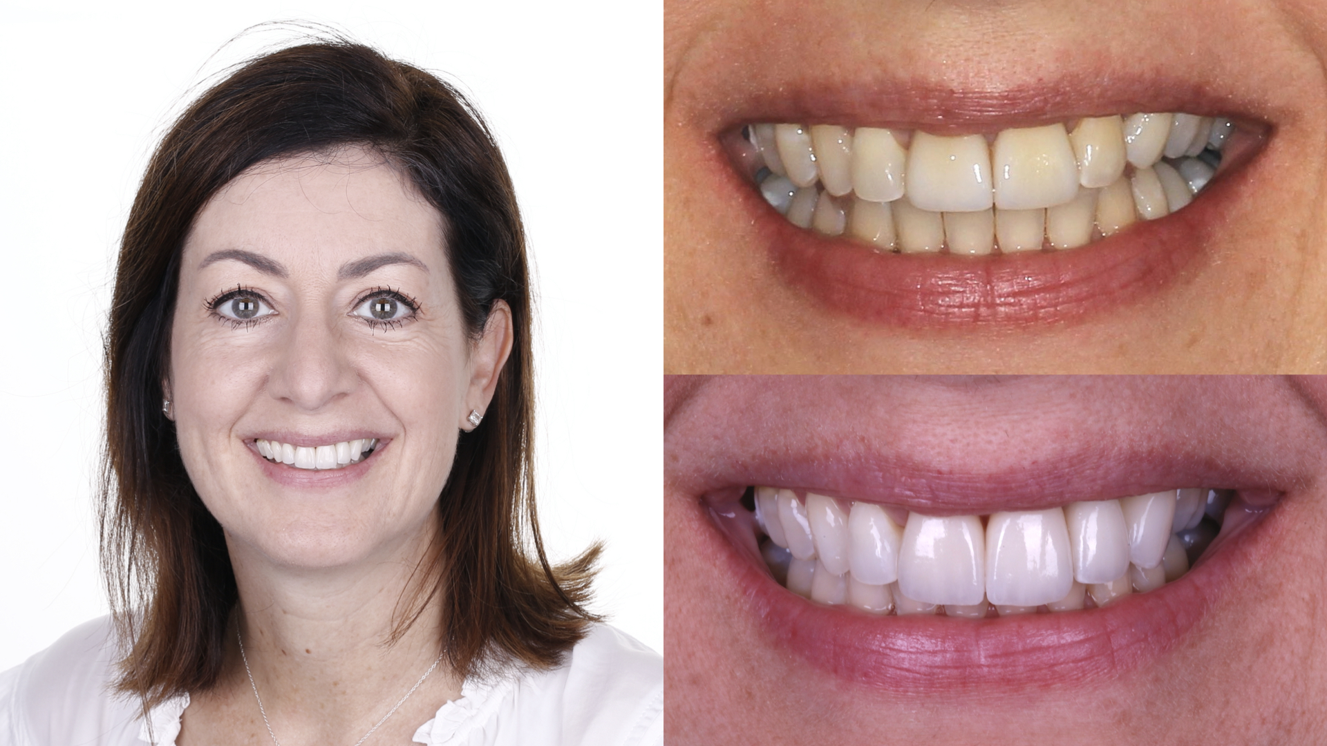 dental implant. invisalign. porcelain veneers crowns. whitening