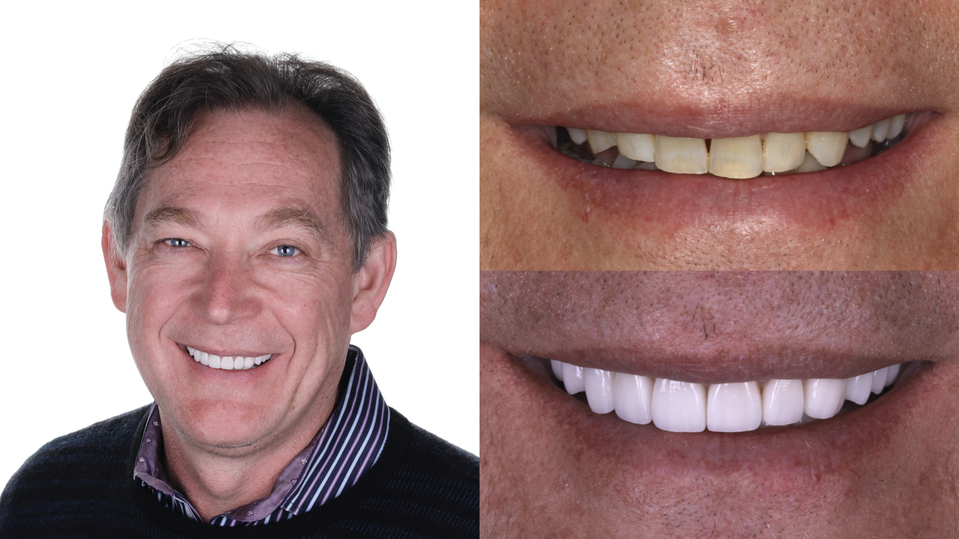 dental implants. porcelain veneers. full mouth reconstruction