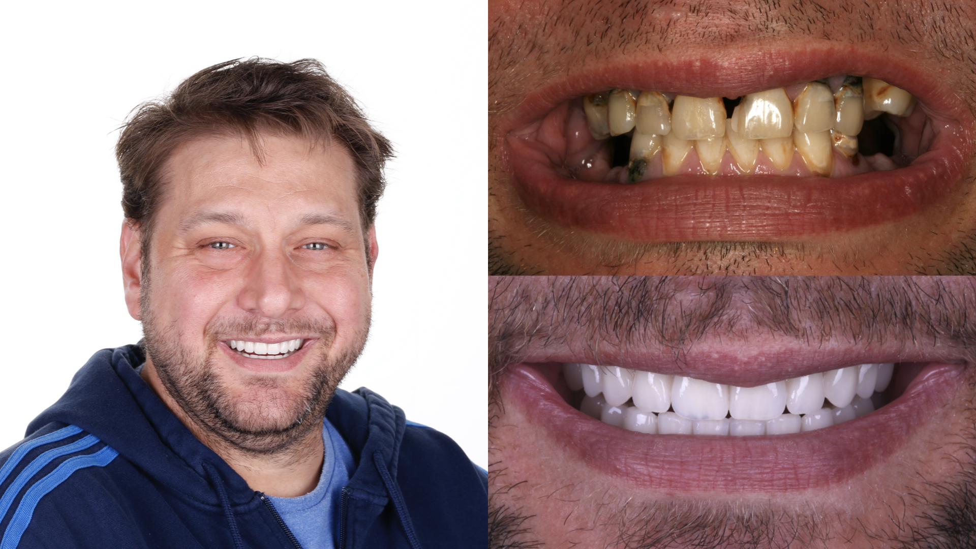 dental implants. fixed hybrid