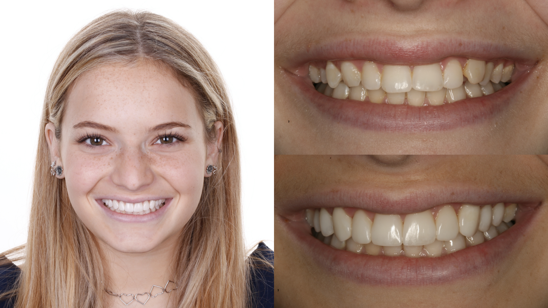 small teeth. gum lift. direct resin veneers