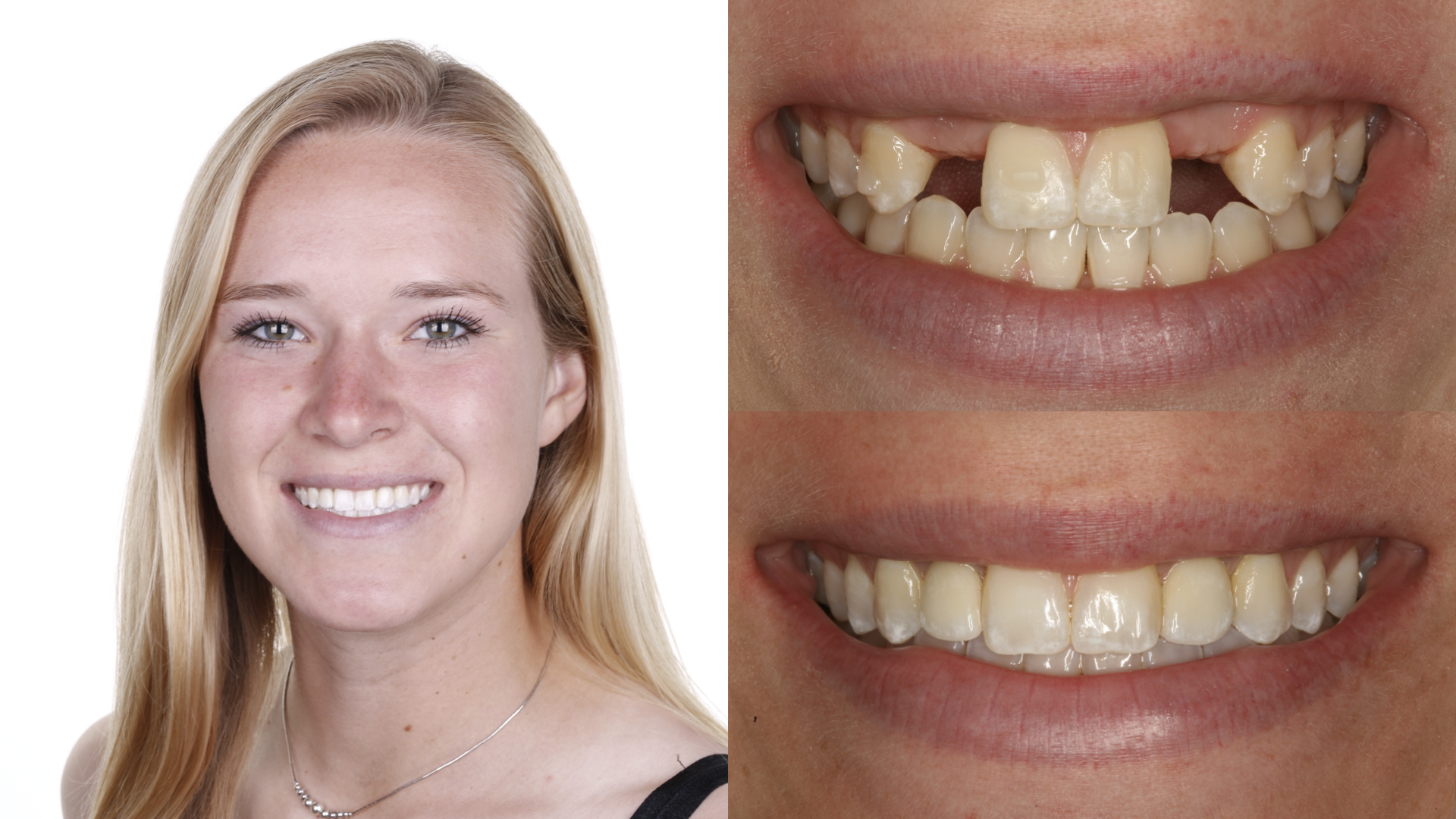 missing teeth. composite bridges